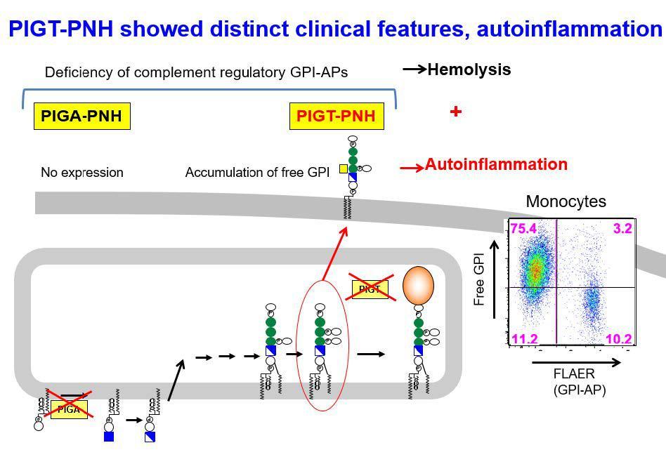 発作性夜間ヘモグロビン尿症の発症メカニズム解明
