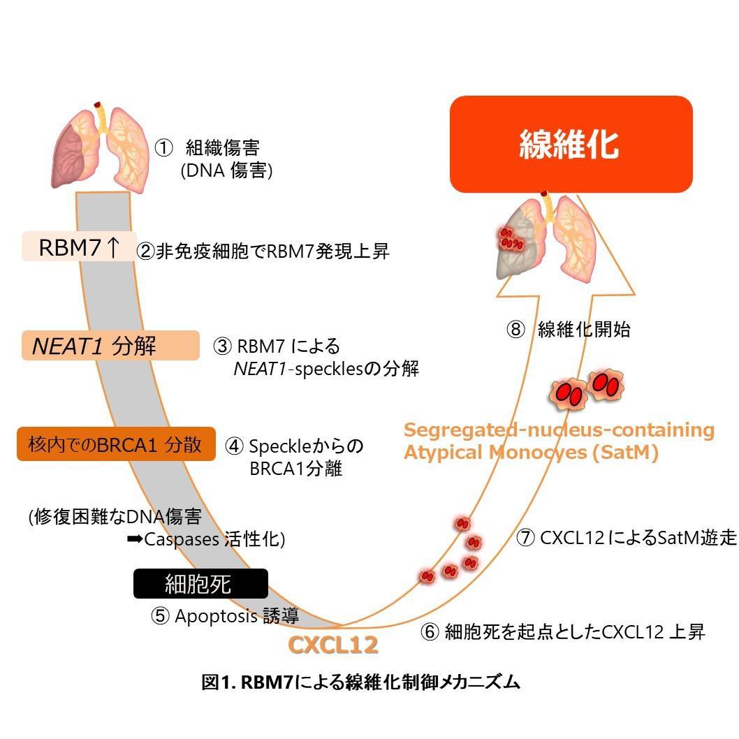 難病 線維症の発症原理 を解明